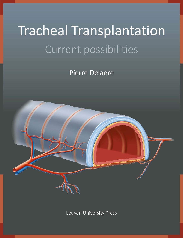 Tracheal Transplantation